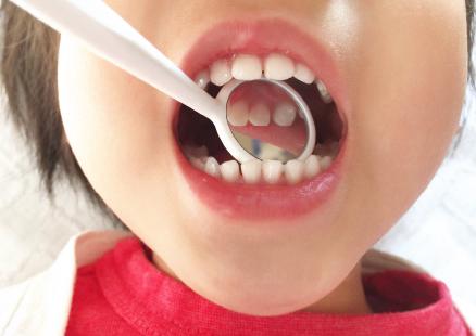 子どものむし歯予防に最適なのは、定期検診とフッ素塗布です。