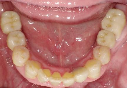 ▲左右奥歯2本、前歯1本をインプラントを入れて、フルジルコニアで被せています。