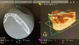 ◀︎ CTで撮影したレントゲン写真データ反映