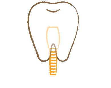 自分の歯のように自然な歯 インプラント